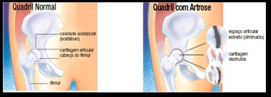 De da de substituição anca coágulos sanguíneos tratamento